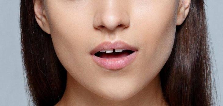 Щель между передними зубами или диастема