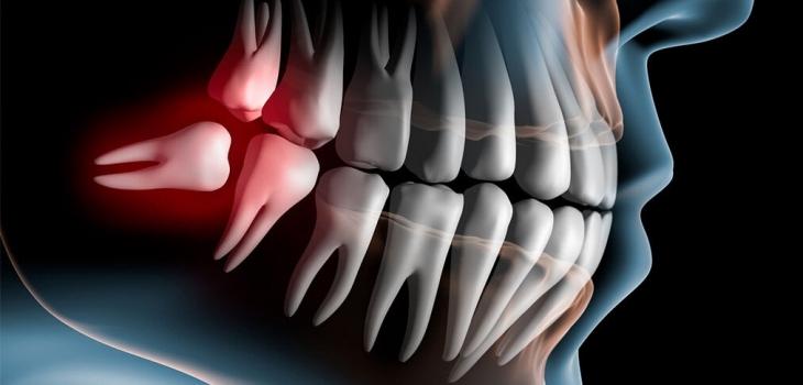 Дистопированные зубы: их опасность, особенности, как это лечат