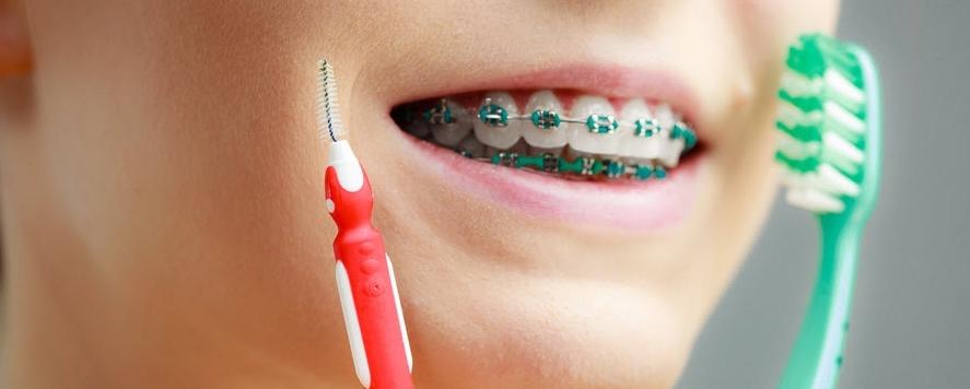 Какие зубные щетки нужны для ухода за брекетами?