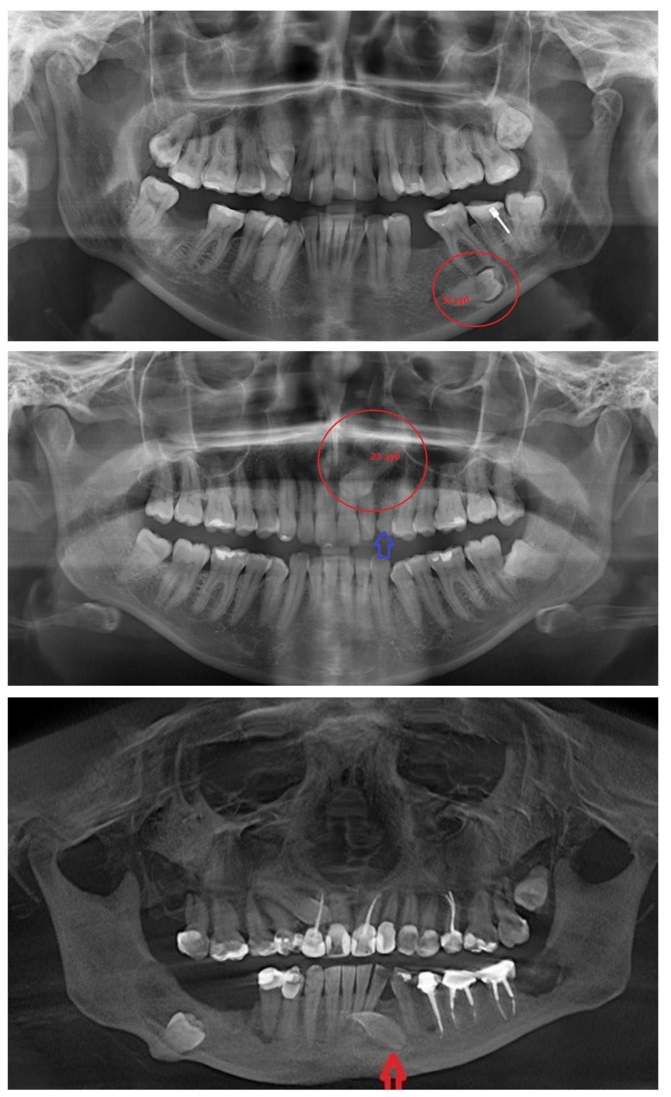 Примеры ретинированных зубов на рентгеновском снимке