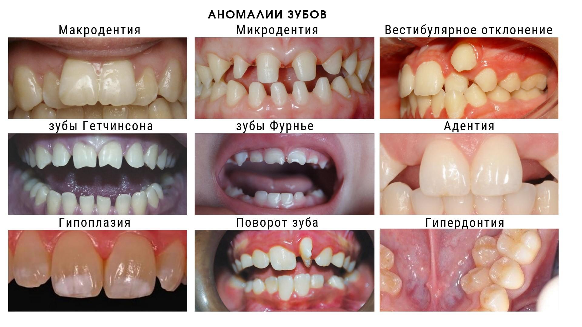 Наиболее частые виды аномалии зубов