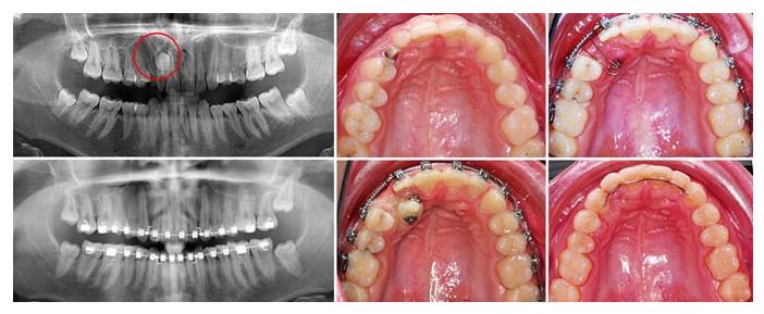 Этапы лечения ретинированного зуба