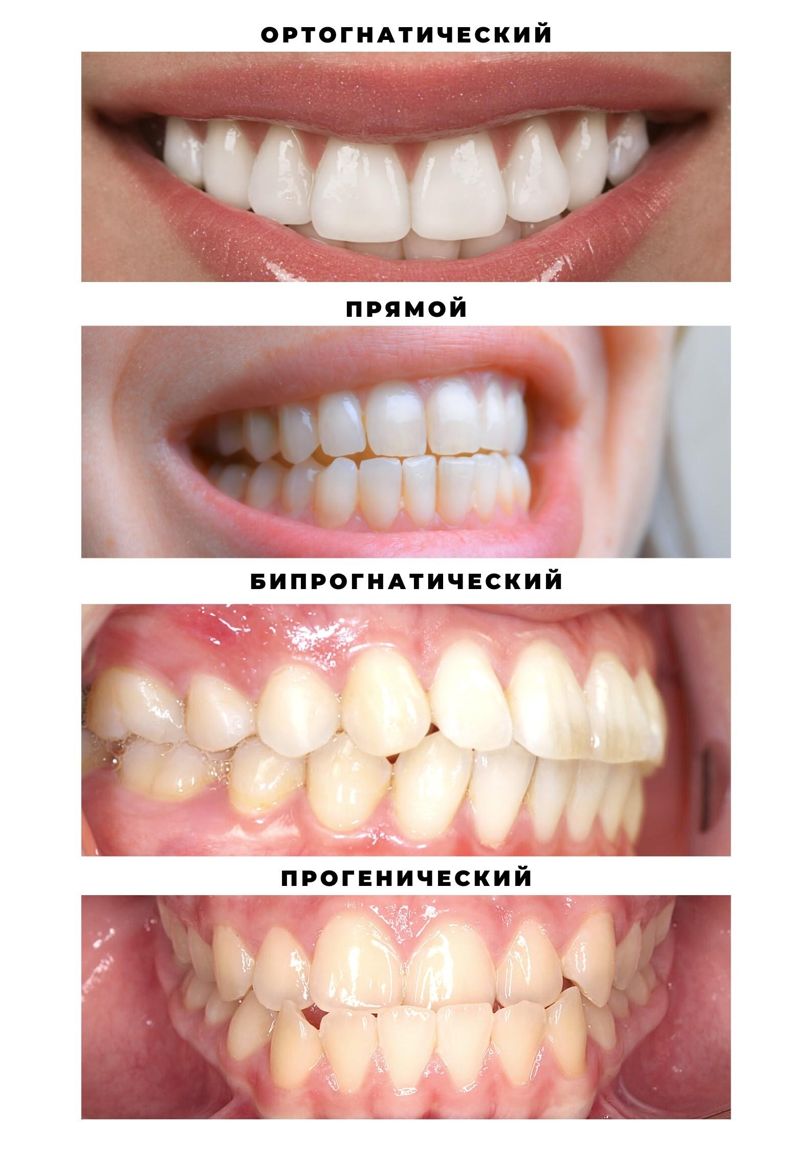неправильный прикус зубов картинки визитка лицо каждого