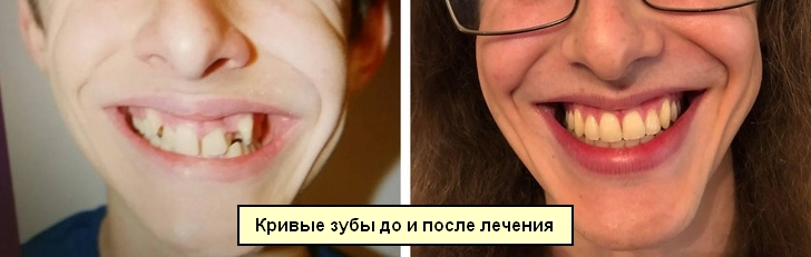 Пример кривых зубов до и после лечения