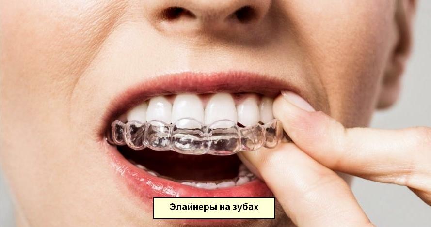 Прозрачные капы на зубах