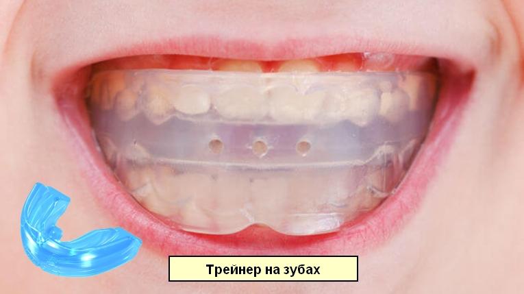 Изображение трейнера отдельно и он же на зубах пациентки