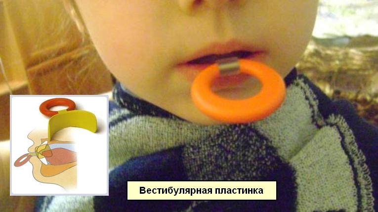 Малыш с вестибулярной пластинкой