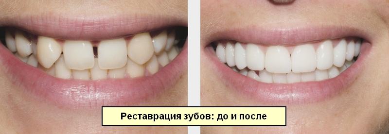 Зубы до и после реставрации и лечения
